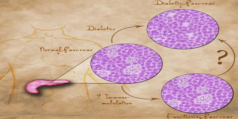 Η αυτοάνοση φύση του Σακχαρώδη διαβήτη τύπου 1 και διατροφική αντιμετώπιση